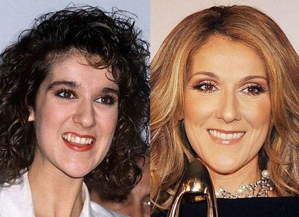 Celebrities Before After Celebrity Teeth Celebrity Smiles Hair Implants