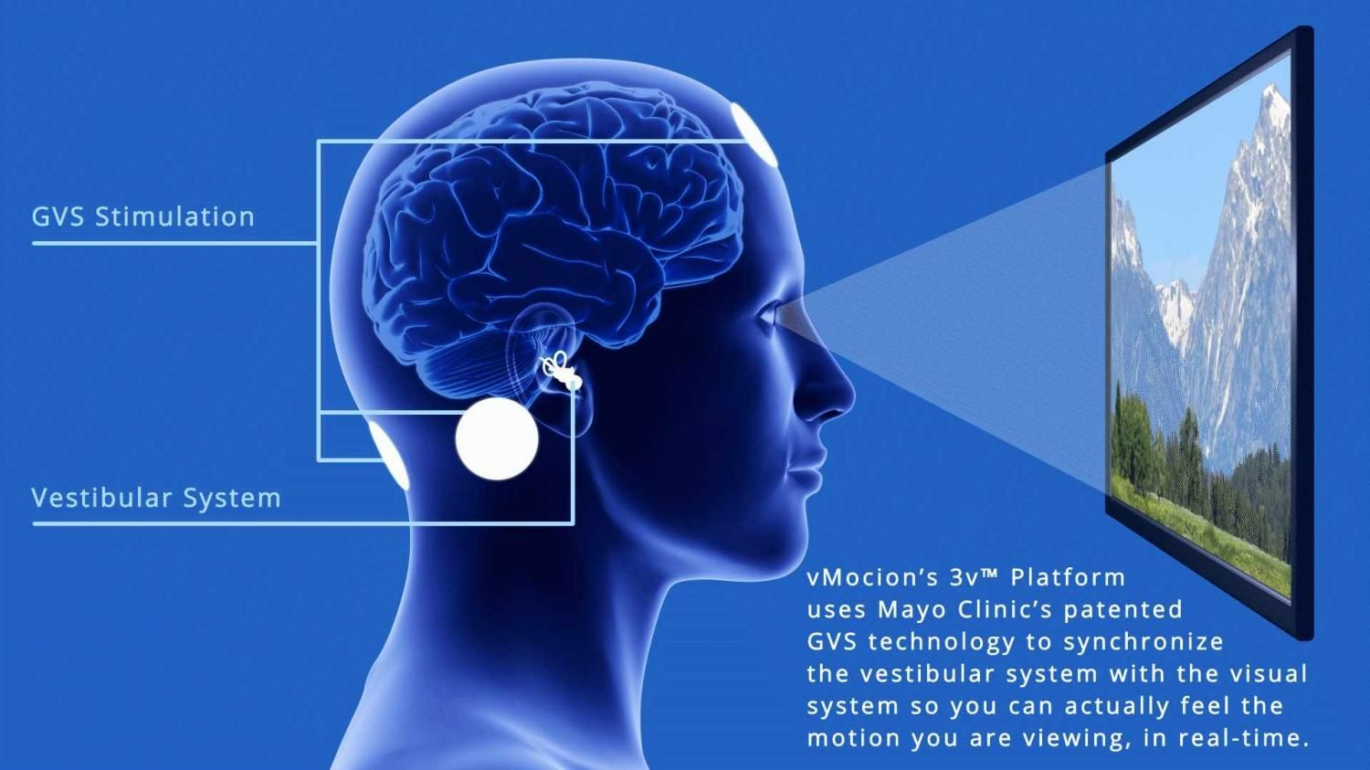 Mayo Clinic, vMocion launch technology adding the sensation of motion into VR