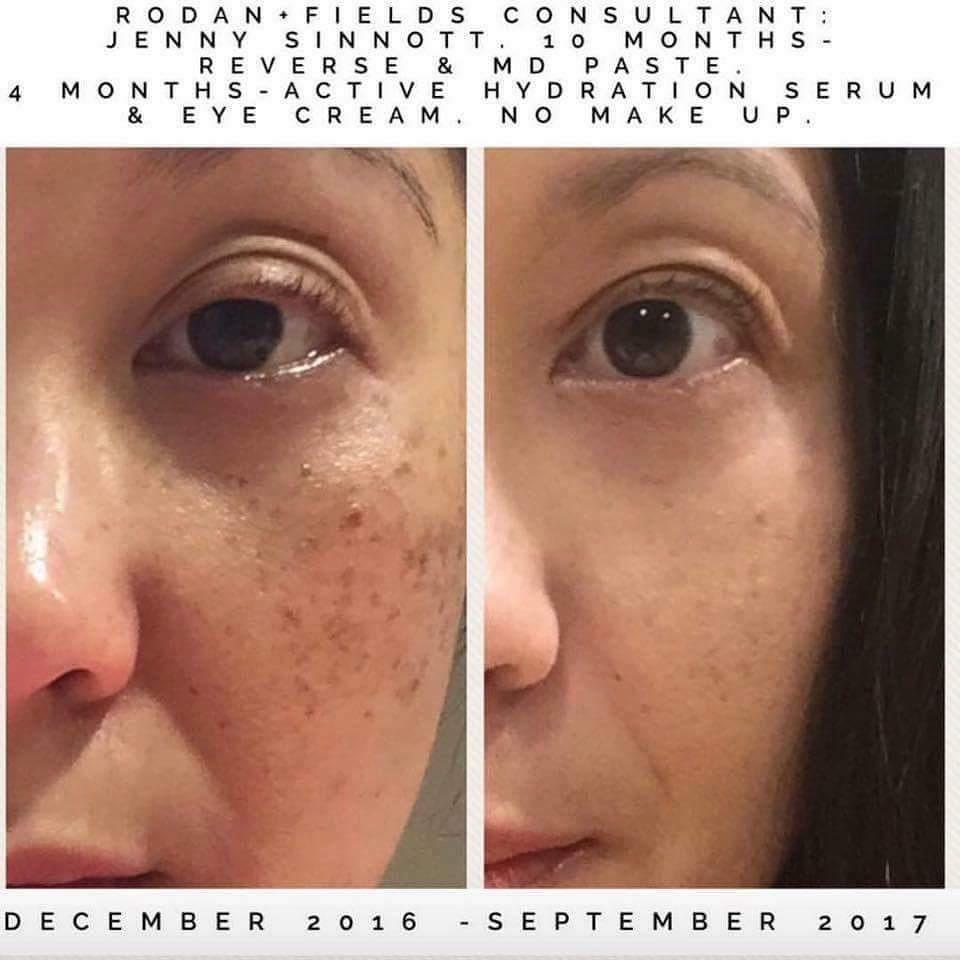 Brown spots melasma freckles sun spots uneven skin tone