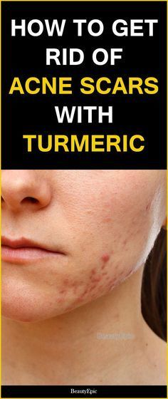 how to get rid of acne scars with turmeric #ClearSkinOvernight