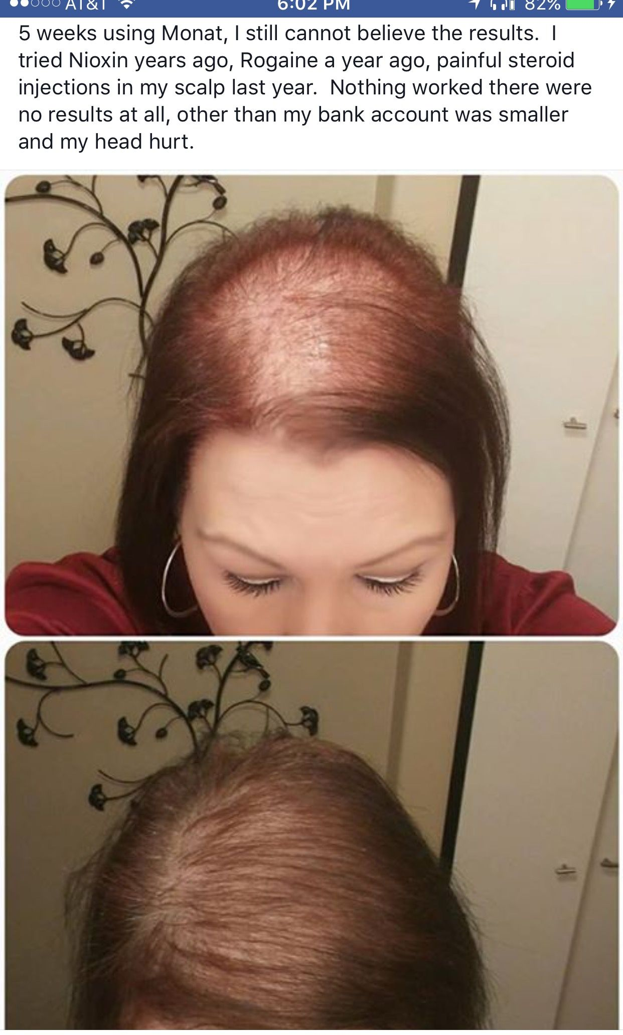 Do You Have Hair Loss Check Out The 5 Weeks Growth Monat Is A