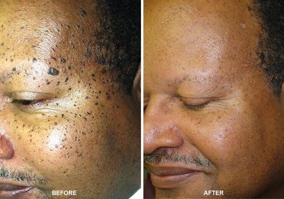 VariLite Laser Treatment Remove Dark Spots Moles