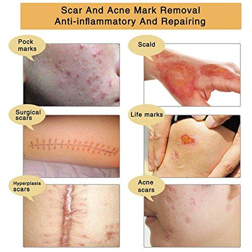 Tcm Scar And Acne Marks Removal Gel Ointment Acne Mark Removal