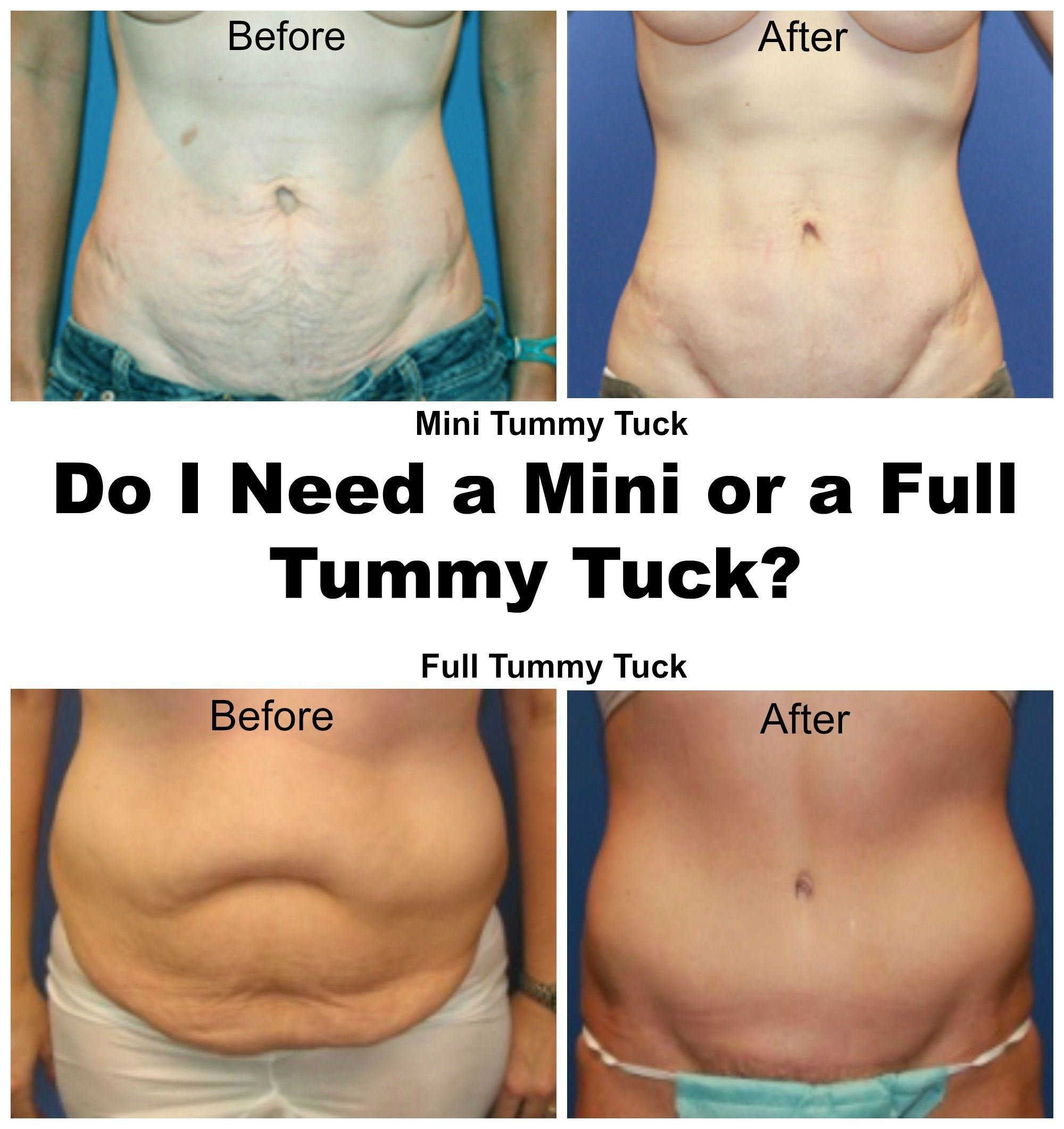 Mini Tummy Tuck Photos Virginia Plastic Surgery