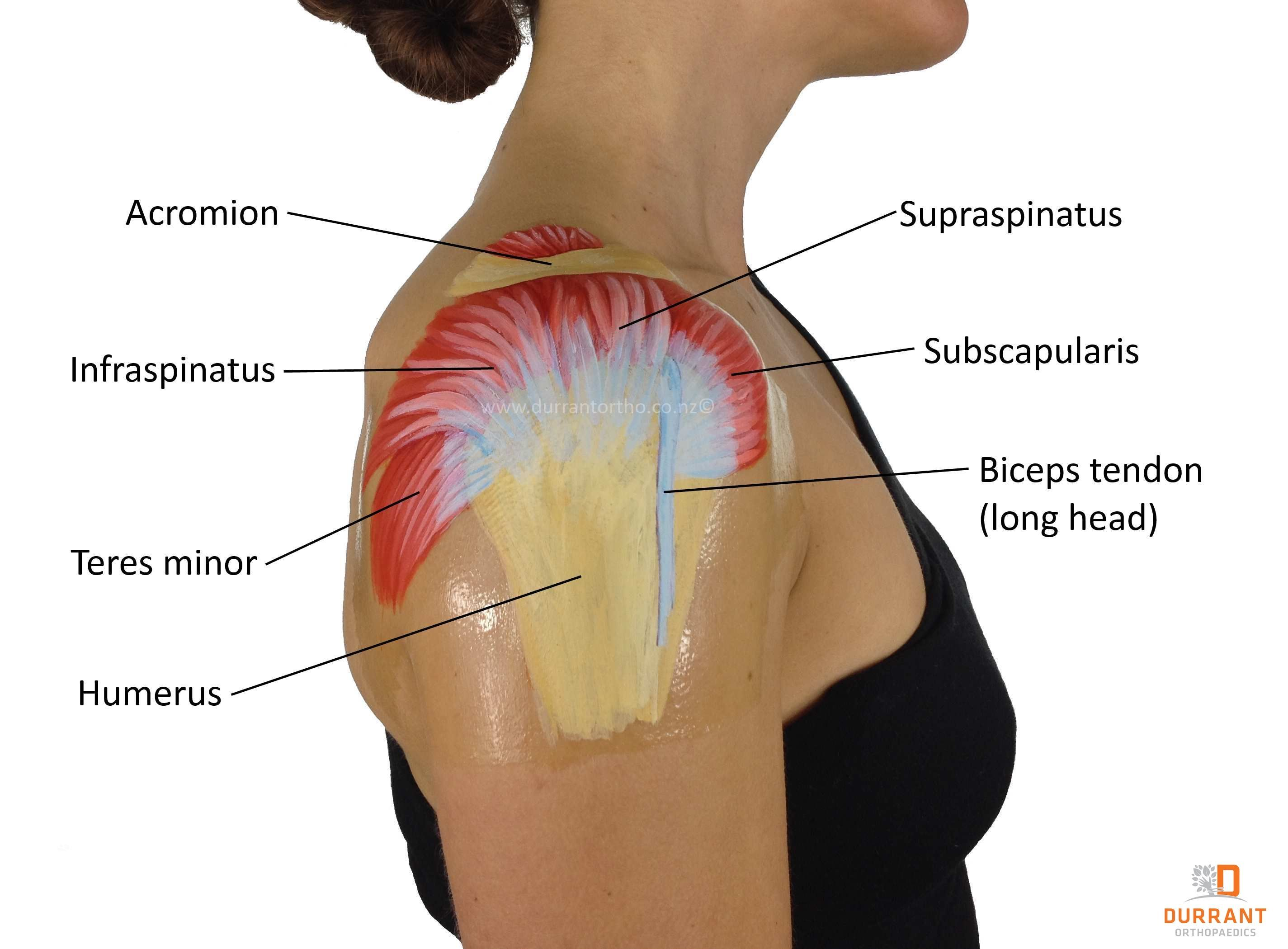 Image result for common causes of neck and shoulder pain