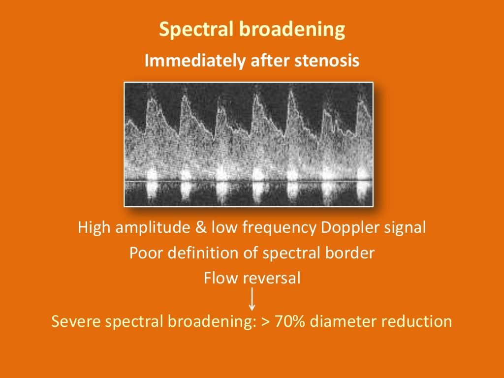 Spectral Broadening Immediately After Stenosis High
