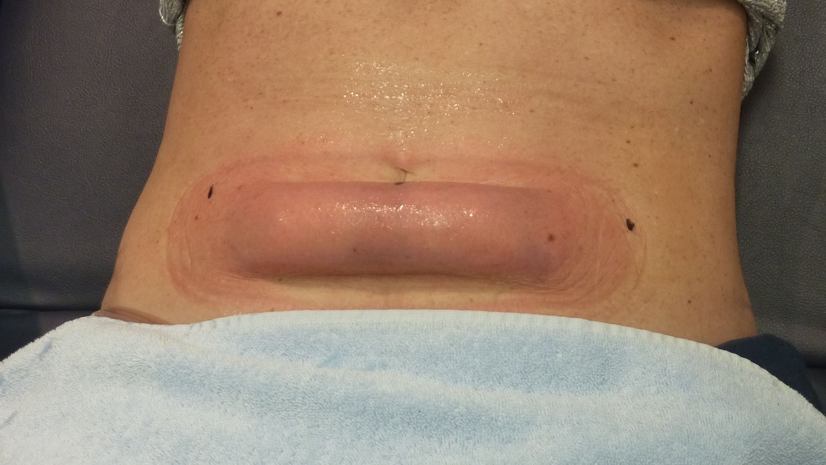 CoolSculpting Before and After Want to shed some extra ...