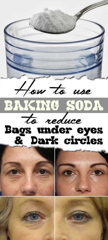 f015d66a2230 1 tsp. baking soda in a glass of mineral water or chamomile tea. Soak two  cotton pads and place under eyes for 10-15 min. Rinse. Repeat daily until  circles ...