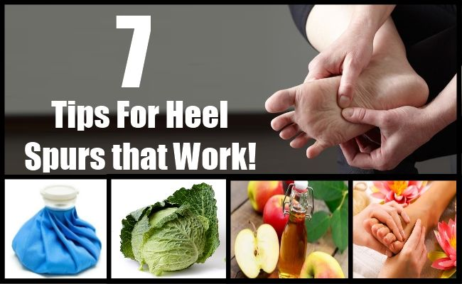how to get rid of heel spurs at home