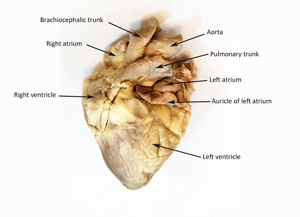 Rezultat slika za sheep heart labeled | Anatomy | Pinterest ...