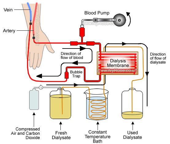 Peritoneal Dialysis Diagram 28 Images Interesting Green