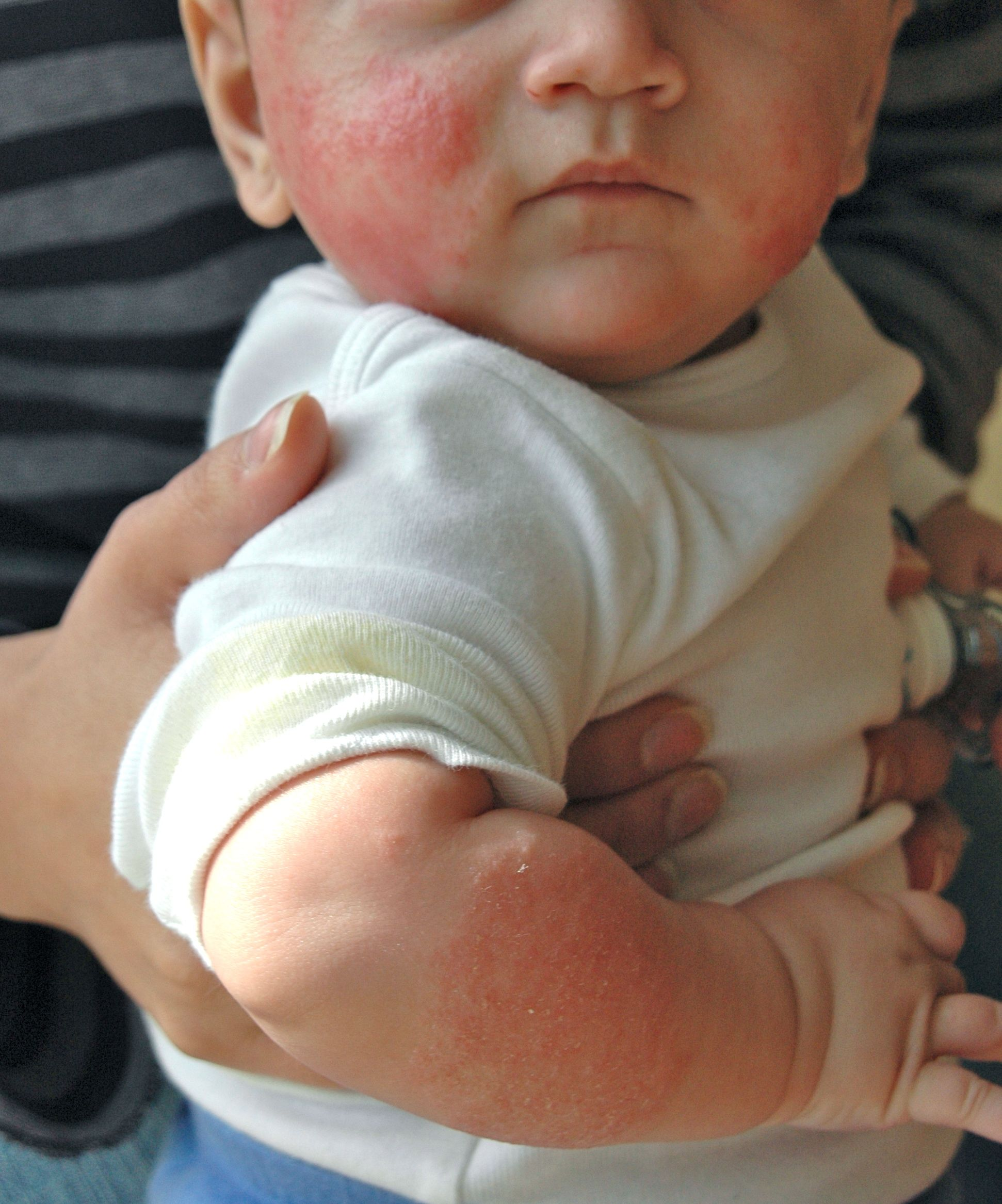 Cow S Milk Allergy Manifested As Atopic Dermatitis Eczema
