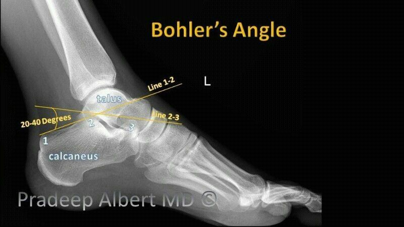 bohlers angle xray movie posters movies poster