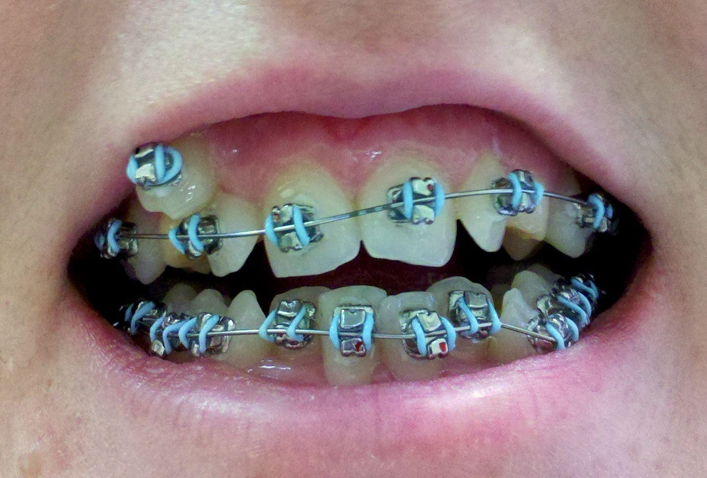 Orthodontist Norfolk #orthodontistnorfolk #allaboutteeth #teeth ...
