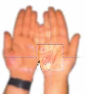 La psoriasis es una condición crónica de la #piel caracterizada por la presencia de zonas# inflamadas, quieres saber cuales son los #remedios #naturales? Hoy en el blog hablamos de algunos remedios para la #psoriasis, como la #fitoterápia, la #nutrición,la #homeopátia, etc. Descubrelos todos a continuación: https://farmaciamoralesblog.wordpress.com/…/remeis-per-la-/   https://www.facebook.com/farmacia.doctora.morales