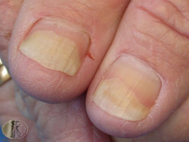 fungal infection of the nail plate chapter 14 nail disorders
