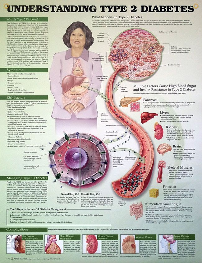 Type 2 Diabetes (3E) anatomy poster includes 5 Keys to Successful ...