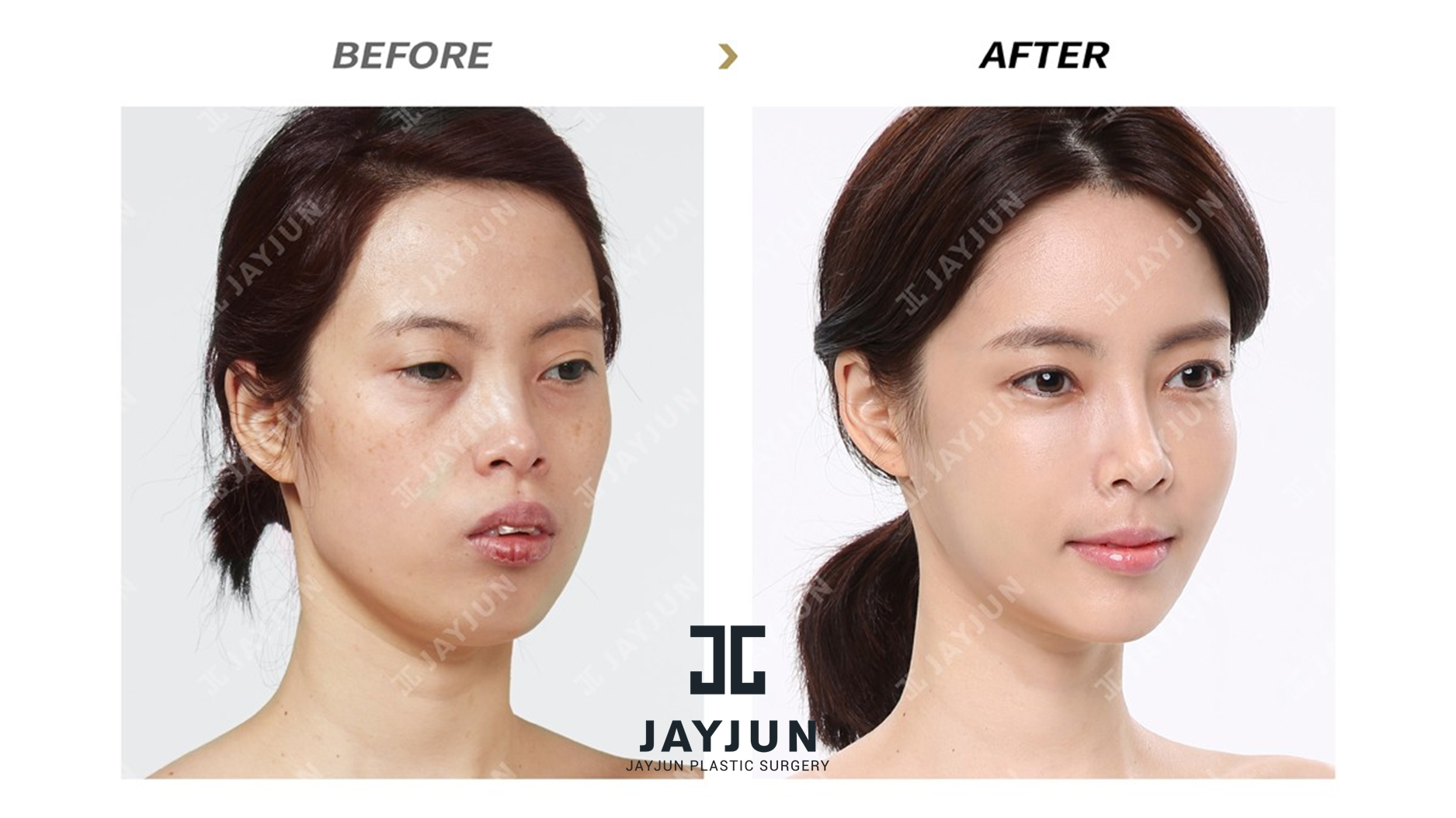 plastic surgery essay about korea English lesson on cosmetic surgery use for  do you think there's a difference between cosmetic and plastic surgery  why is cosmetic surgery so popular.