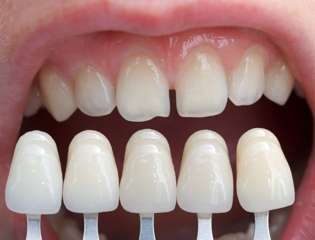 Color Science: Shade Guides and Shade Selection | Dental veneers, Dental  veneers cost, Dental