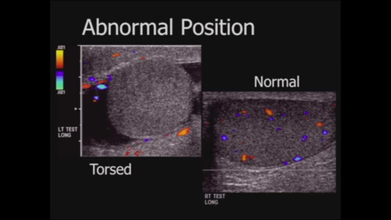 Pediatrics scrotal ultrasound Sonography, Ultrasound