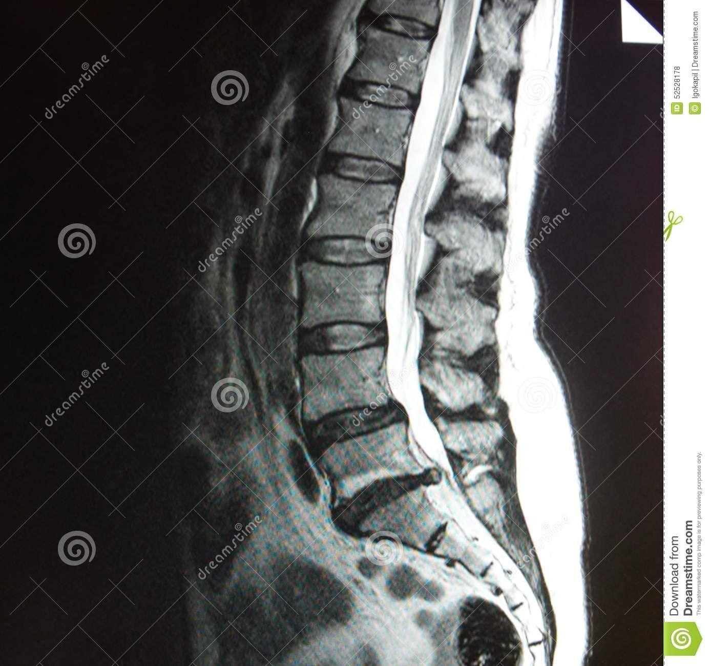 mri lumbar spine stenosis basis modern medicine modern diagnostic ...