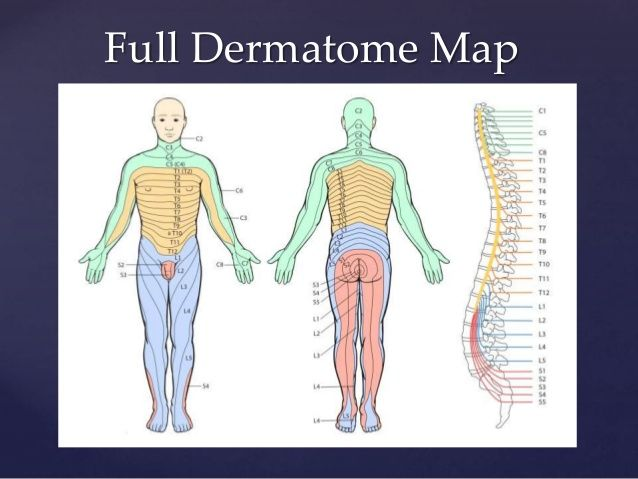 Image result for dermatomes and myotomes Pain Referral