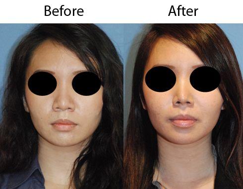 Glasses nose bridge asian dating