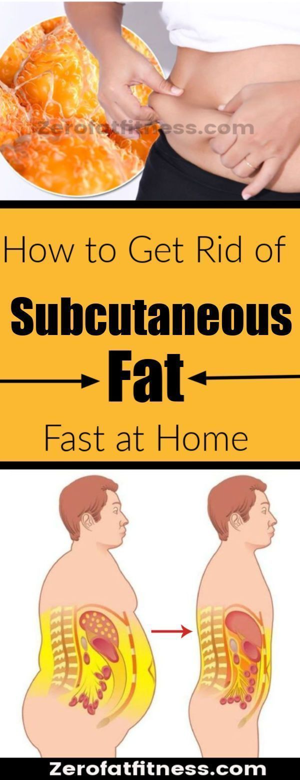 How to Get Rid of Subcutaneous Fat Fast at Home – #Fast #fat #Home #rid #Subcuta…