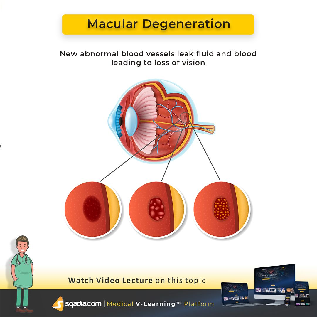 Macular Degeneration Arises When The Macula Of The Retina Gets