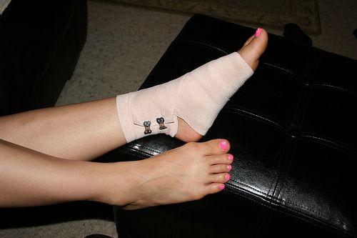 stock foto foot exerciții în varicoză