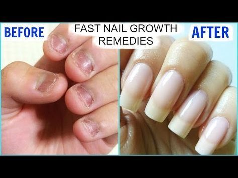 Naturally Grow Your Nails Faster Within A Week Easy Effective Home Remedy Youtube Make Nails Grow How To Grow Nails Grow Long Nails