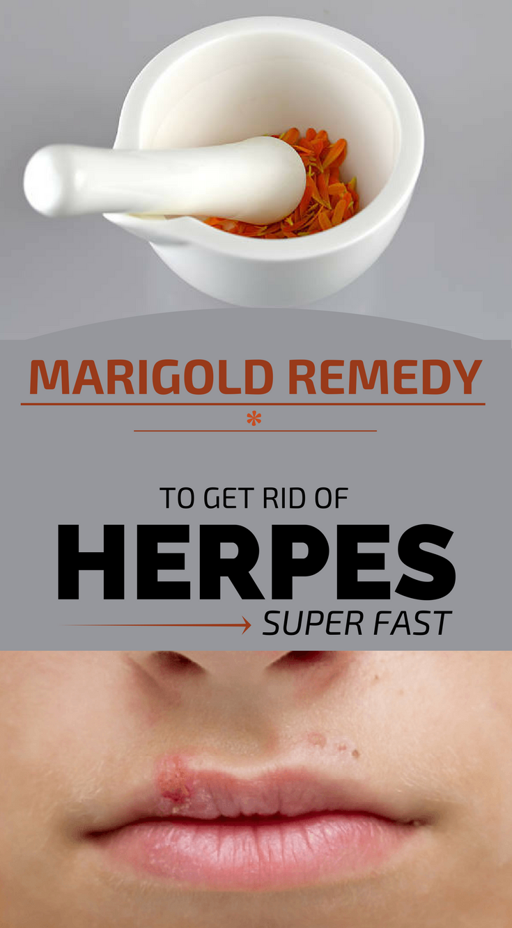 Marigold Remedy To Get Rid Of Herpes Super Fast | Herbs | Health