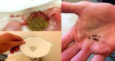 Arenilla en rinones sintomas