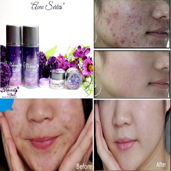 Apakah Efek Samping Adeeva Skincare Berbahaya Untuk