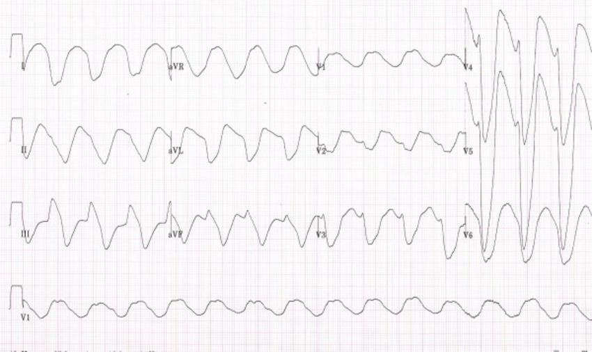 Image Result For Sine Wave 12 Lead Ecg Sine Wave Chart Math