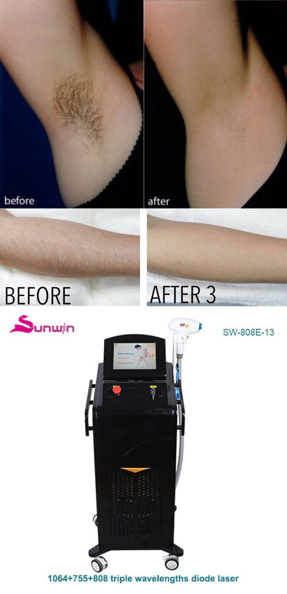 The Diode 808 Laser Is The Gold Standard In Permanent Hair Removal And Is Effective On All Pigmented Diode Laser Hair Removal Laser Hair Hair Removal Permanent