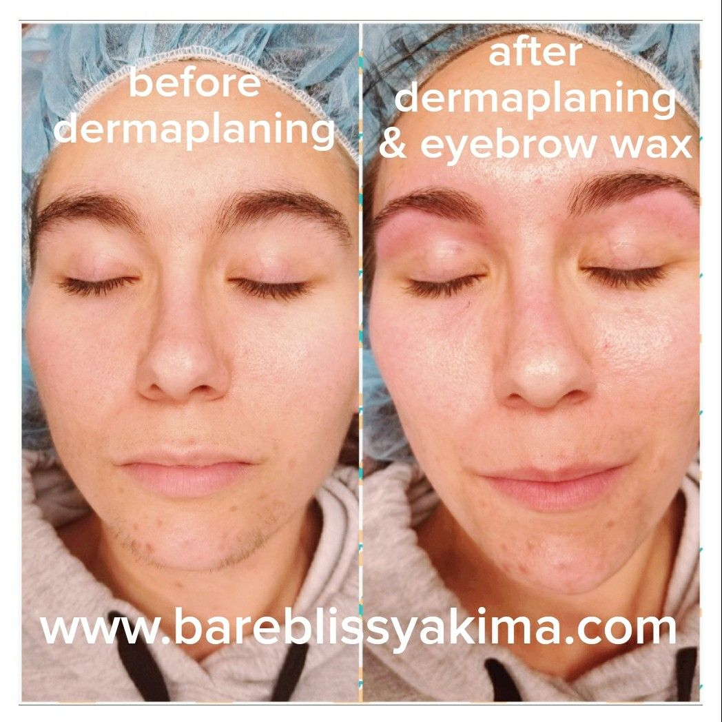 Look At The Difference A Dermaplaning Service Makes No More Facial Hair And Her Skin Looks And Feels Rejuvenate Dermaplaning Skin Rejuvenation Waxed Eyebrows