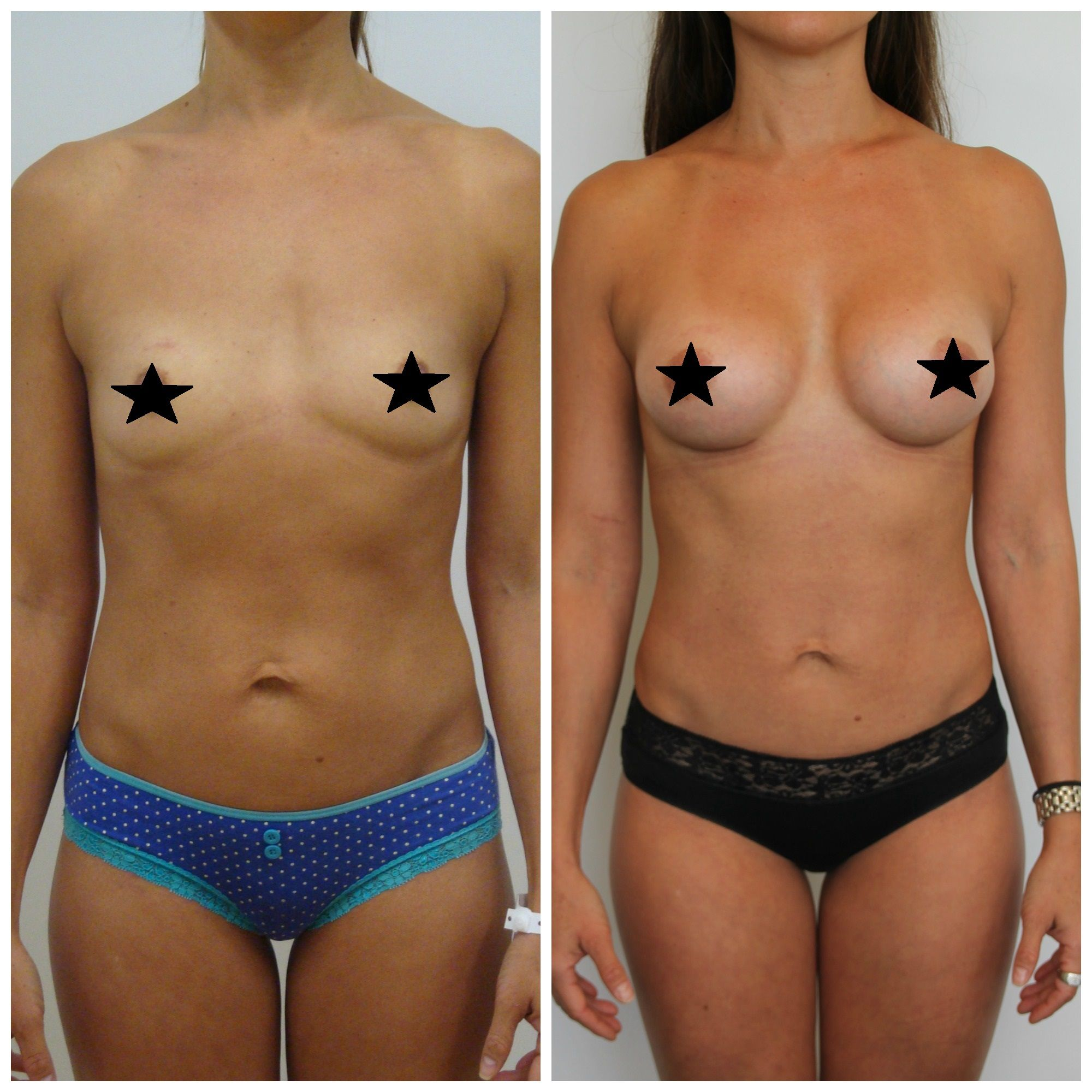 Think, that breast augumentation b cup
