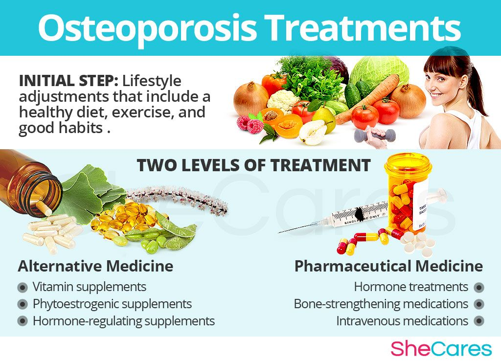 Osteoporosis Treatments Osteoporosis Osteoporosis Treatment Alternative Medicine