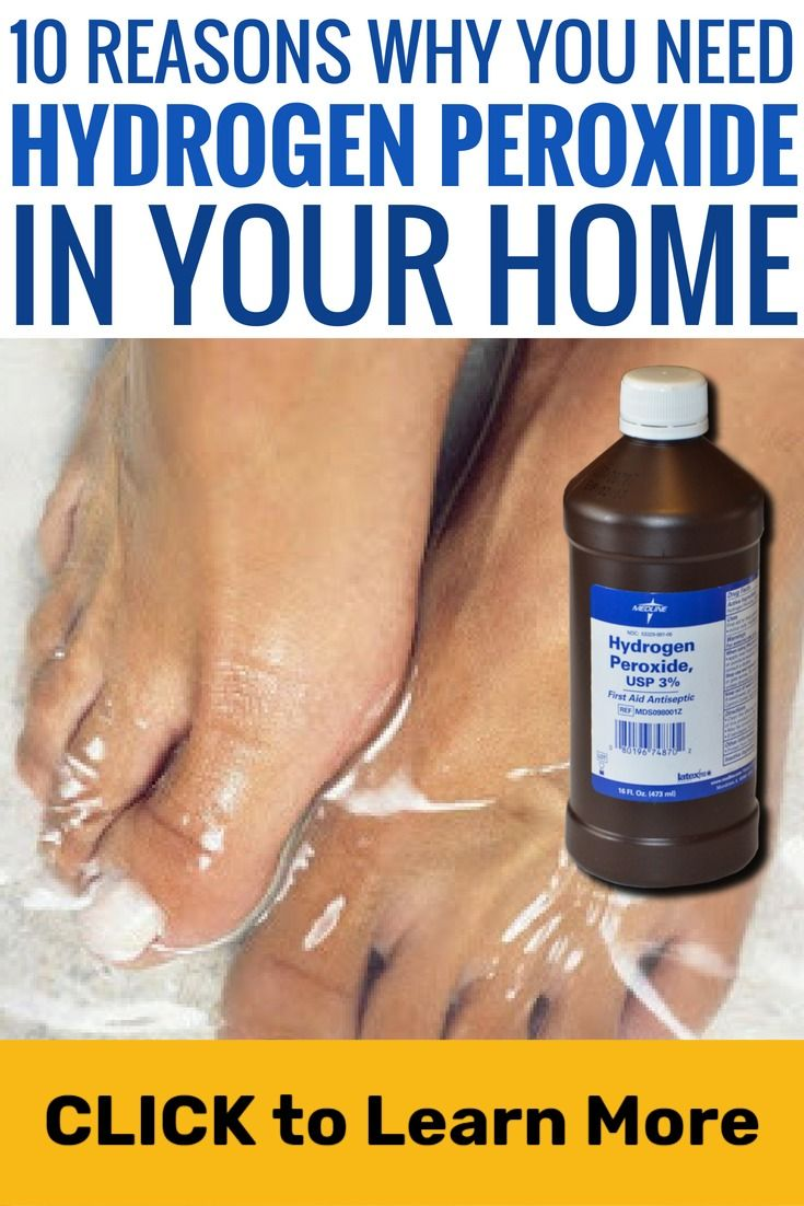 10 Hydrogen Peroxide Life Hacks You Need To Know Diy Cleaning Hacks Cleaning With Peroxide Diy Cleaning Products