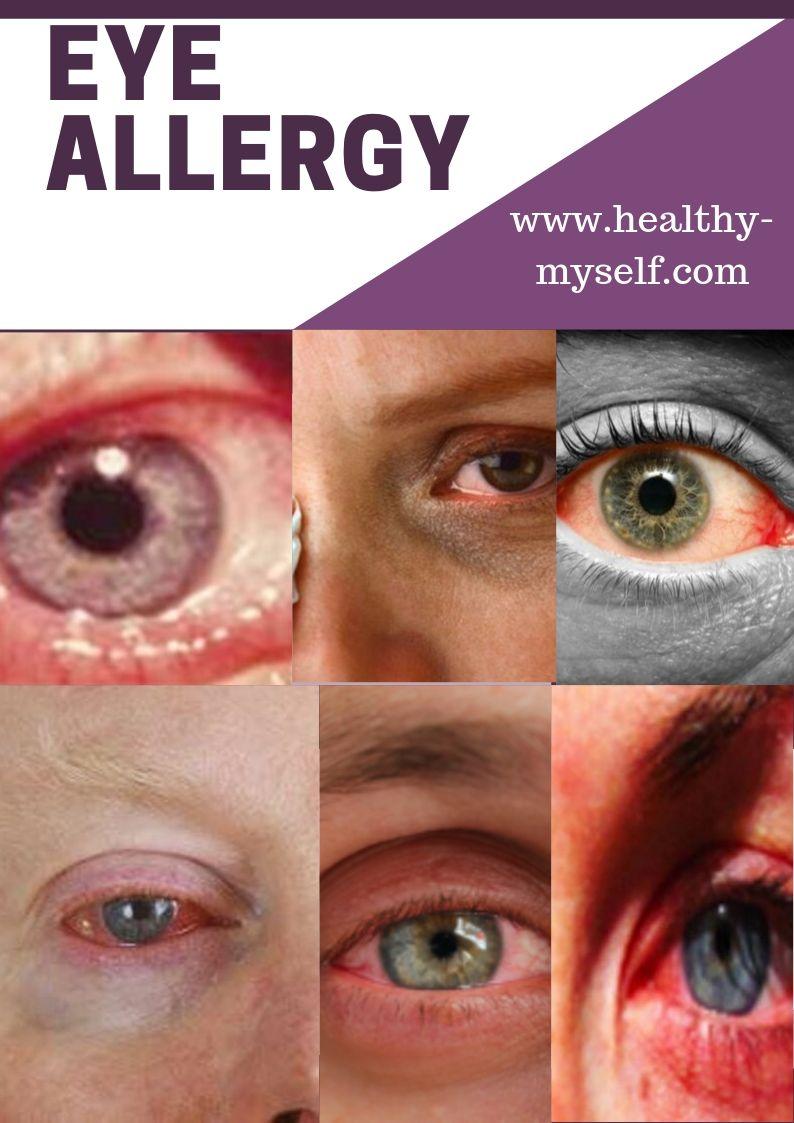 Eye AllergyEye Allergy Symptoms & Home Remidies Details