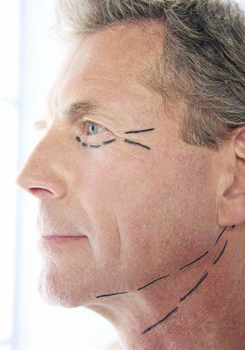 Plastic Surgery It S A Guy Thing Too Plastic Surgery Cosmetic Surgery Male Plastic Surgery