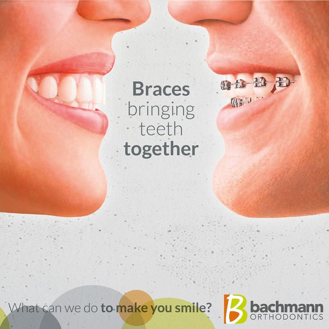 Bachmann Orthodontics What Can We Do To Make You Smile Drs Claudia And Lutz Bachmann Are World Class Specialists Orthodontics Smile Dental Invisalign Braces