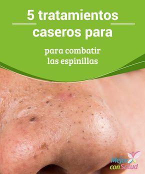 Remedios Caseros Para Las Espinillas En La Cara