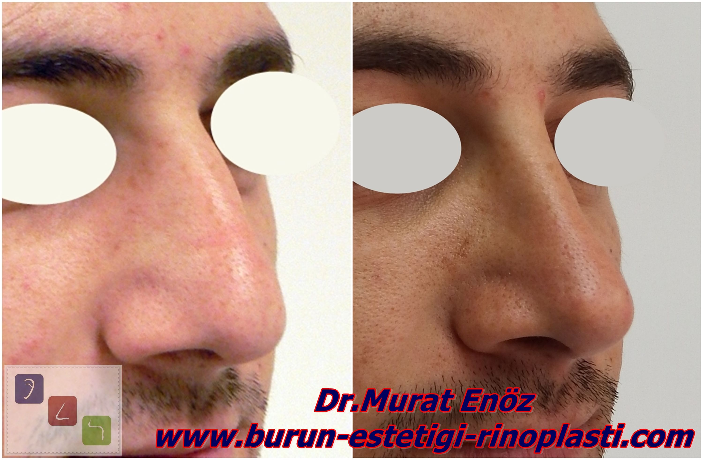 Rhinoplasty In Men Istanbul Http://www.healthzoneturkey