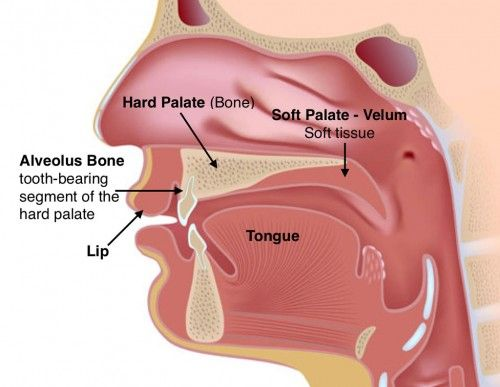 What Causes Cleft Lips And Palate  The Craniofacial Team
