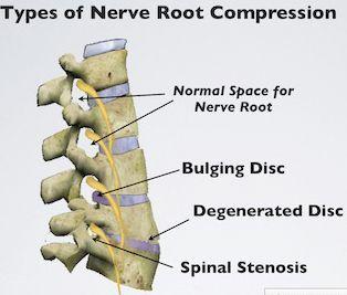 pin on lumbalgia back pain