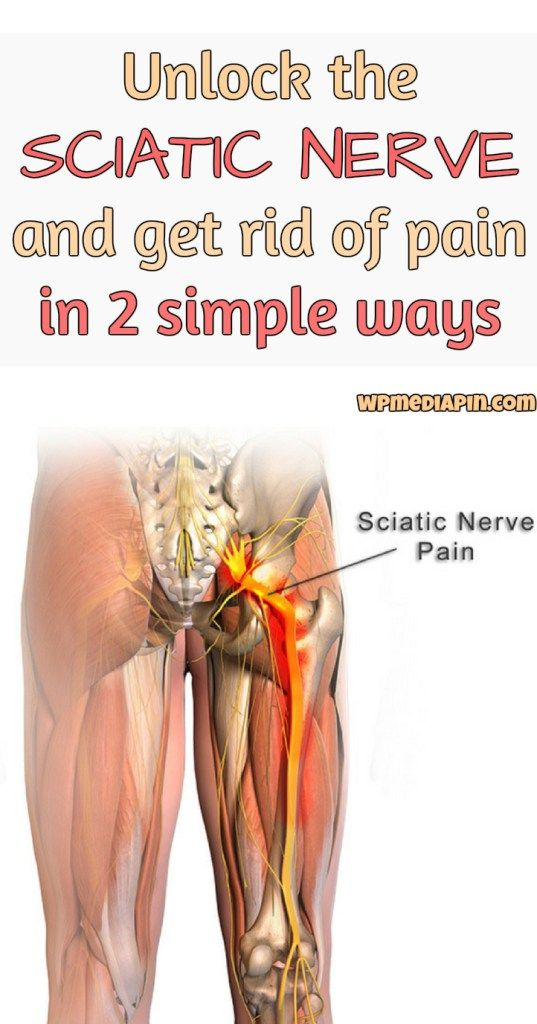 Unlock the SCIATIC NERVE and Get Rid of Pain in 2 Simple Ways ...