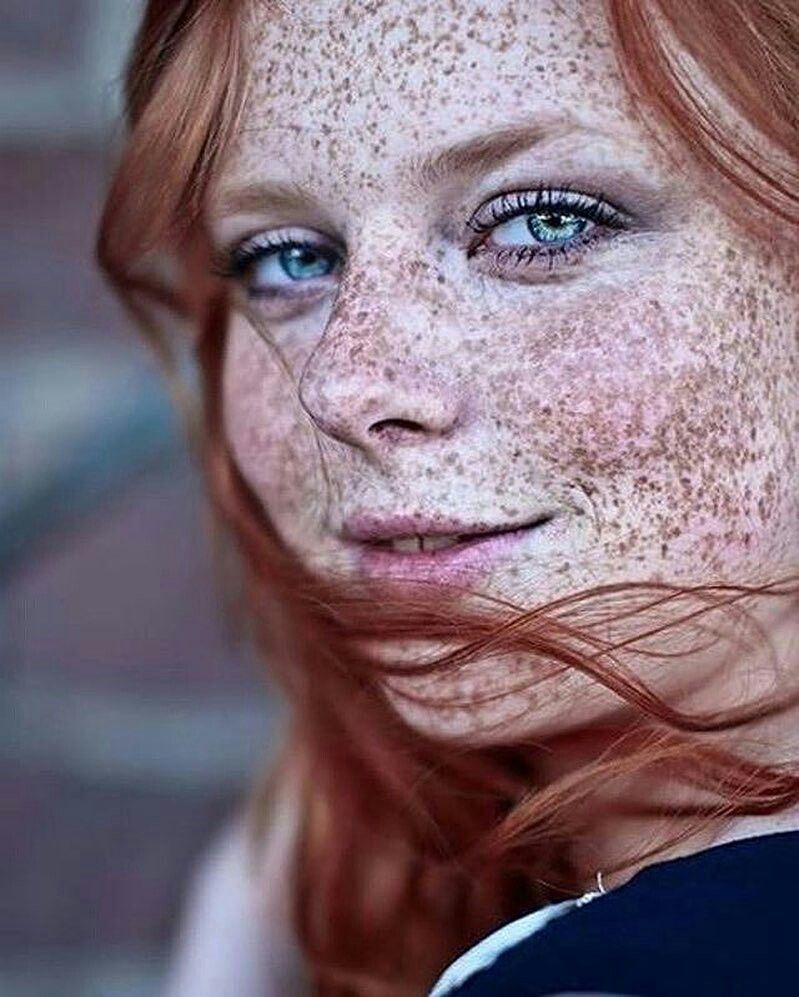 ho made freckles iconic - 750×1027