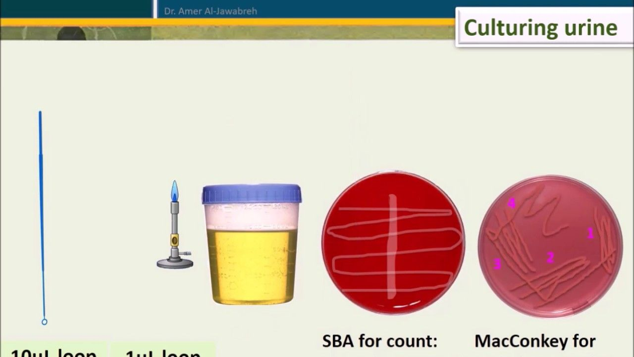 fdb116654d86a2f7dd32f6892dbe1921 - How Long Does It Take To Get Urine Culture Results